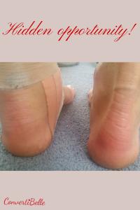 feet hid op